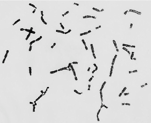 Fig. 1 Chromosomal breakage (46 XY)