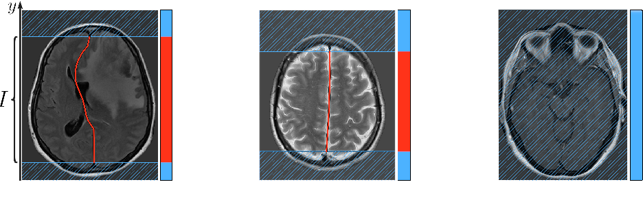 Figure 3 for Incorporating Task-Specific Structural Knowledge into CNNs for Brain Midline Shift Detection