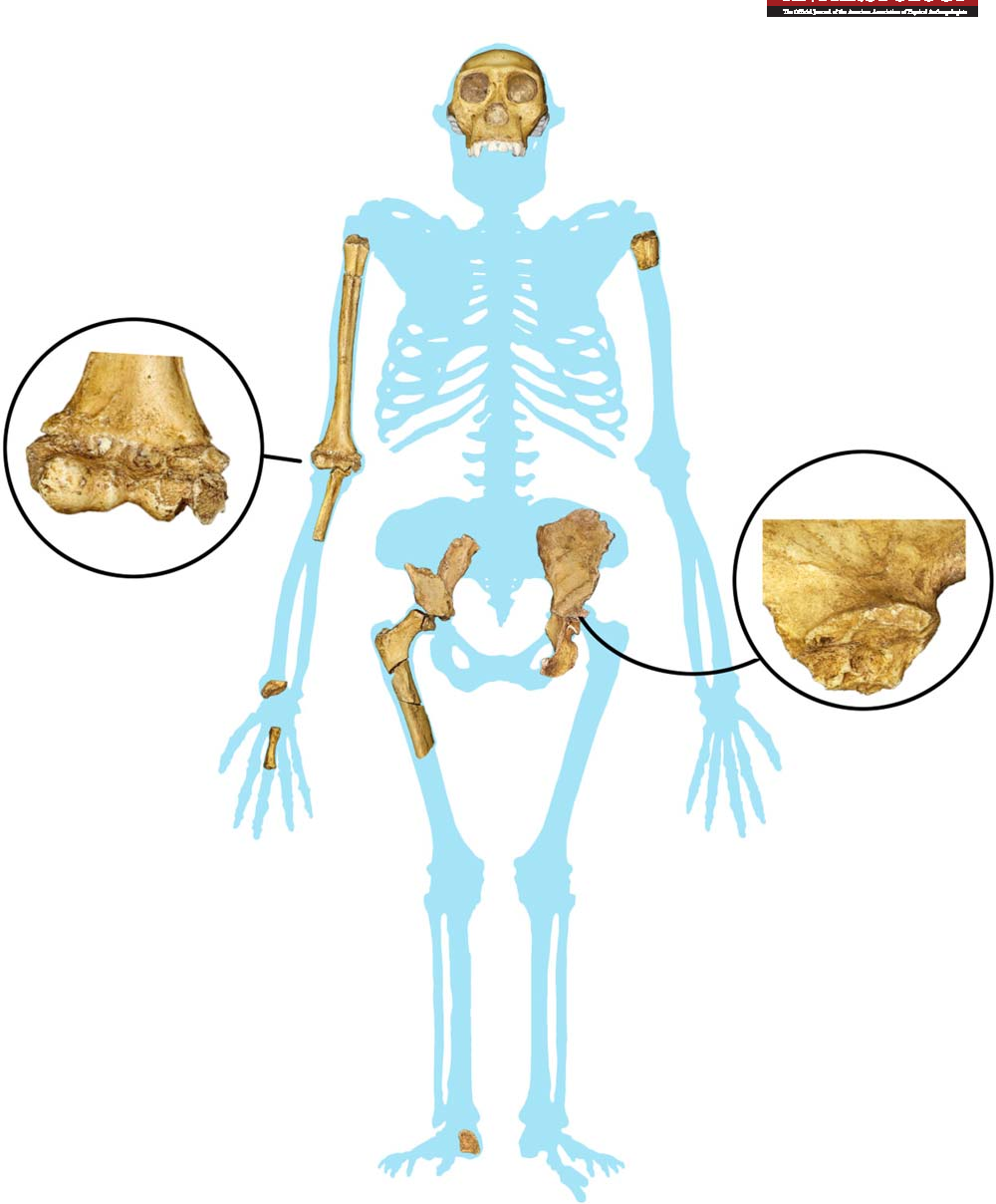 Figure 1 from The postcranial skeletal maturation of ...