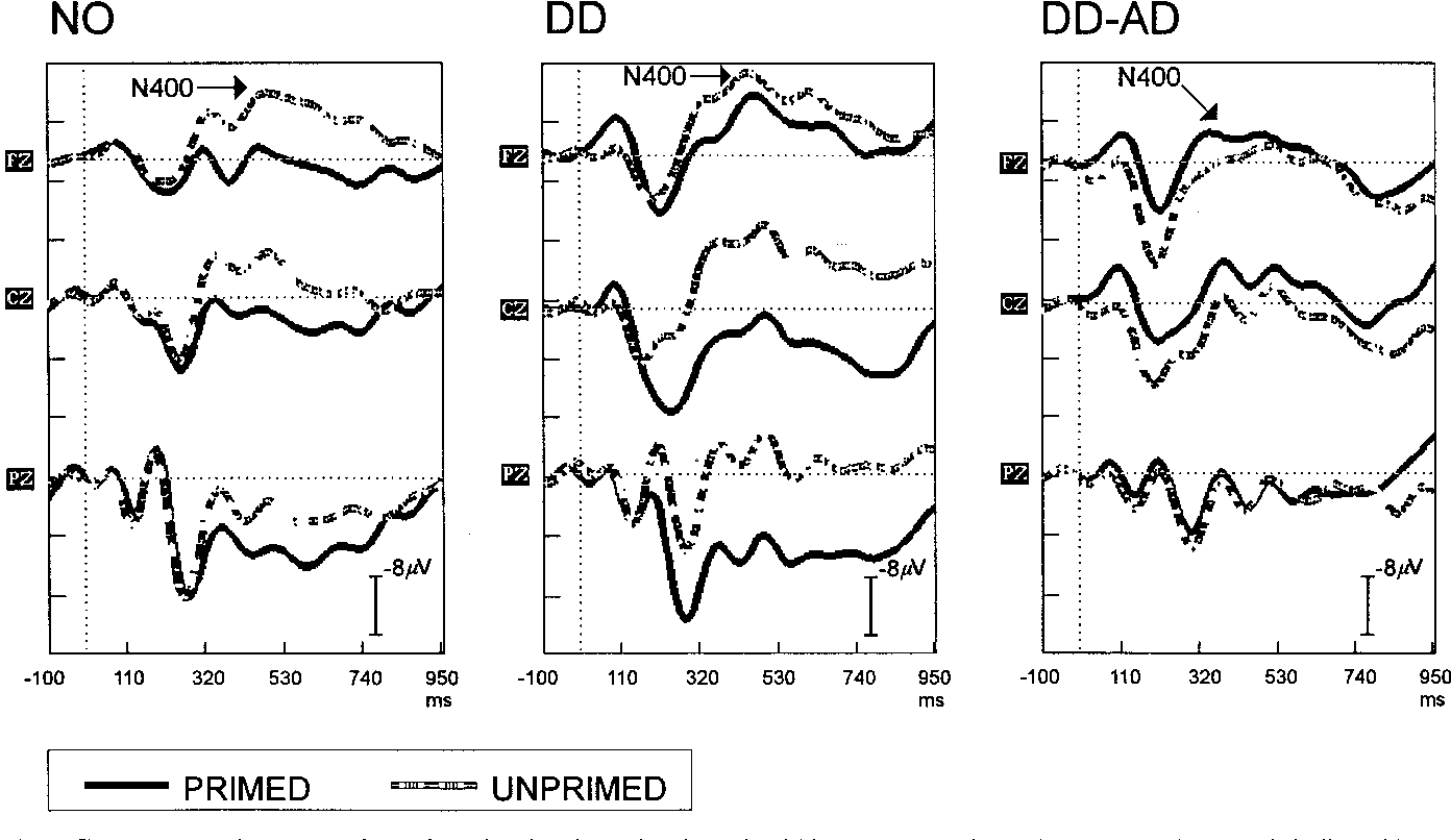 Fig. 2 Group averaged ERP waveforms for primed and unprimed words within NO, DD and DD-AD groups. The N400 is indicated by an arrow. Negativity is indicated by upward deflection.
