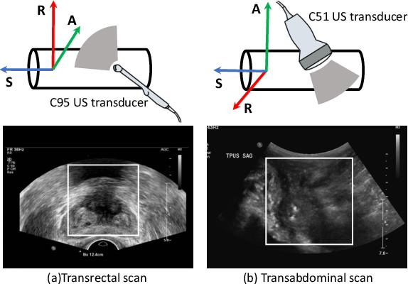 Figure 1 for Transducer Adaptive Ultrasound Volume Reconstruction