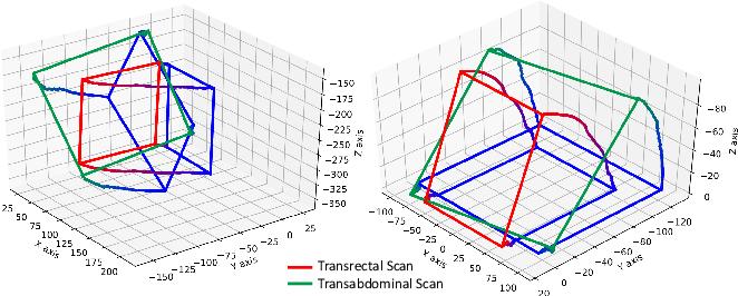 Figure 3 for Transducer Adaptive Ultrasound Volume Reconstruction