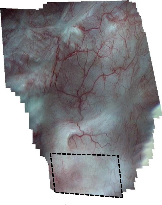 Figure 1 for Construction of extended 3D field of views of the internal bladder wall surface: a proof of concept