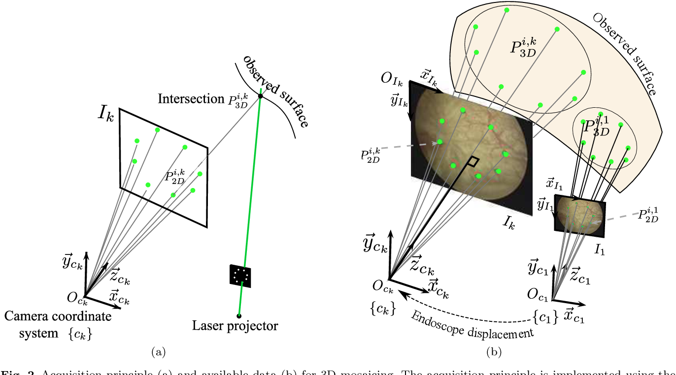 Figure 3 for Construction of extended 3D field of views of the internal bladder wall surface: a proof of concept