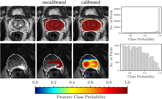 Figure 1 for Confidence Calibration and Predictive Uncertainty Estimation for Deep Medical Image Segmentation
