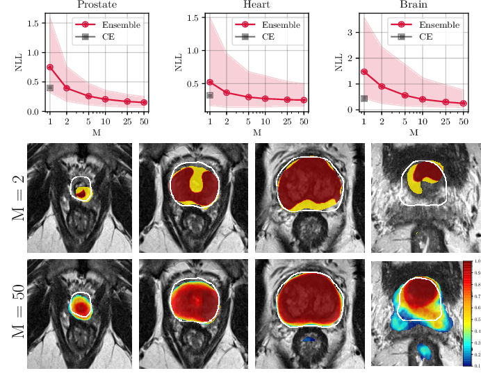 Figure 2 for Confidence Calibration and Predictive Uncertainty Estimation for Deep Medical Image Segmentation