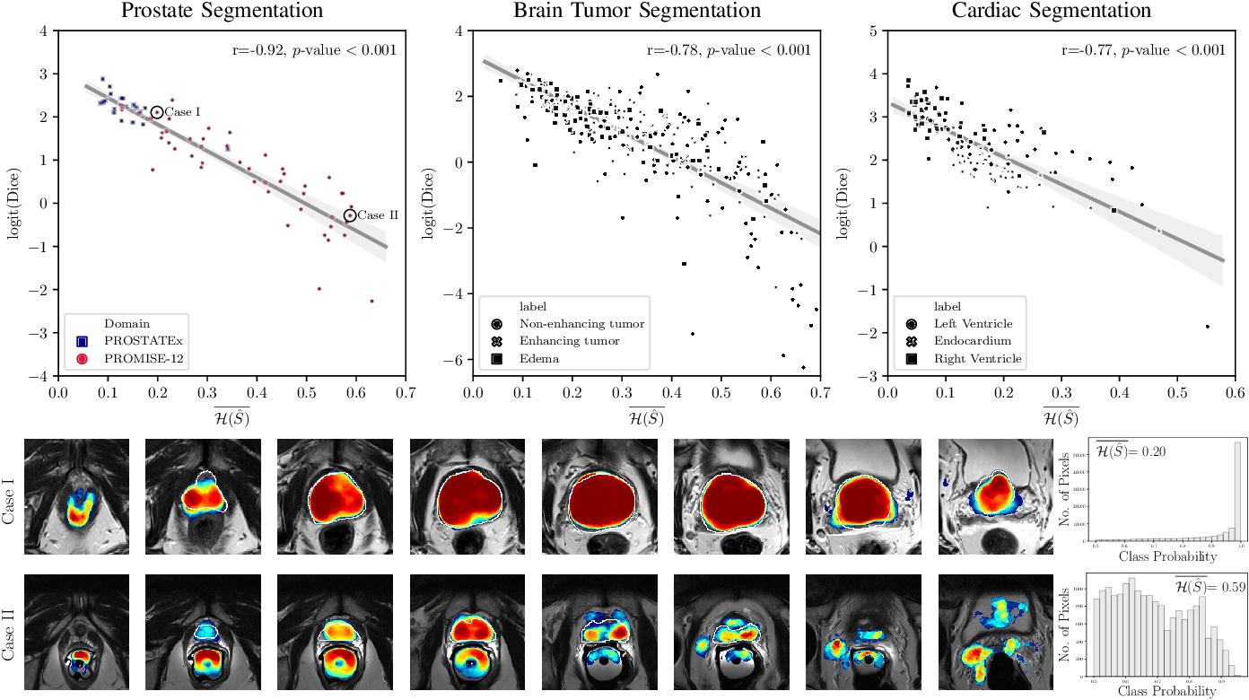 Figure 4 for Confidence Calibration and Predictive Uncertainty Estimation for Deep Medical Image Segmentation