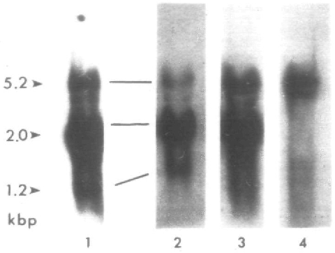 Fig. 1. Hybridization of RNAs to cDNA clones and v-Ki-ras. Total cellular RNA samples (20 >ug) from Yl-DM cells were probed with •^P-labeled DNA from the following: (1) v-Ki-j^£ clone pH1H13; (2) cDNA cYKi2; (3) cDNA k4; (4) cDNA kl.