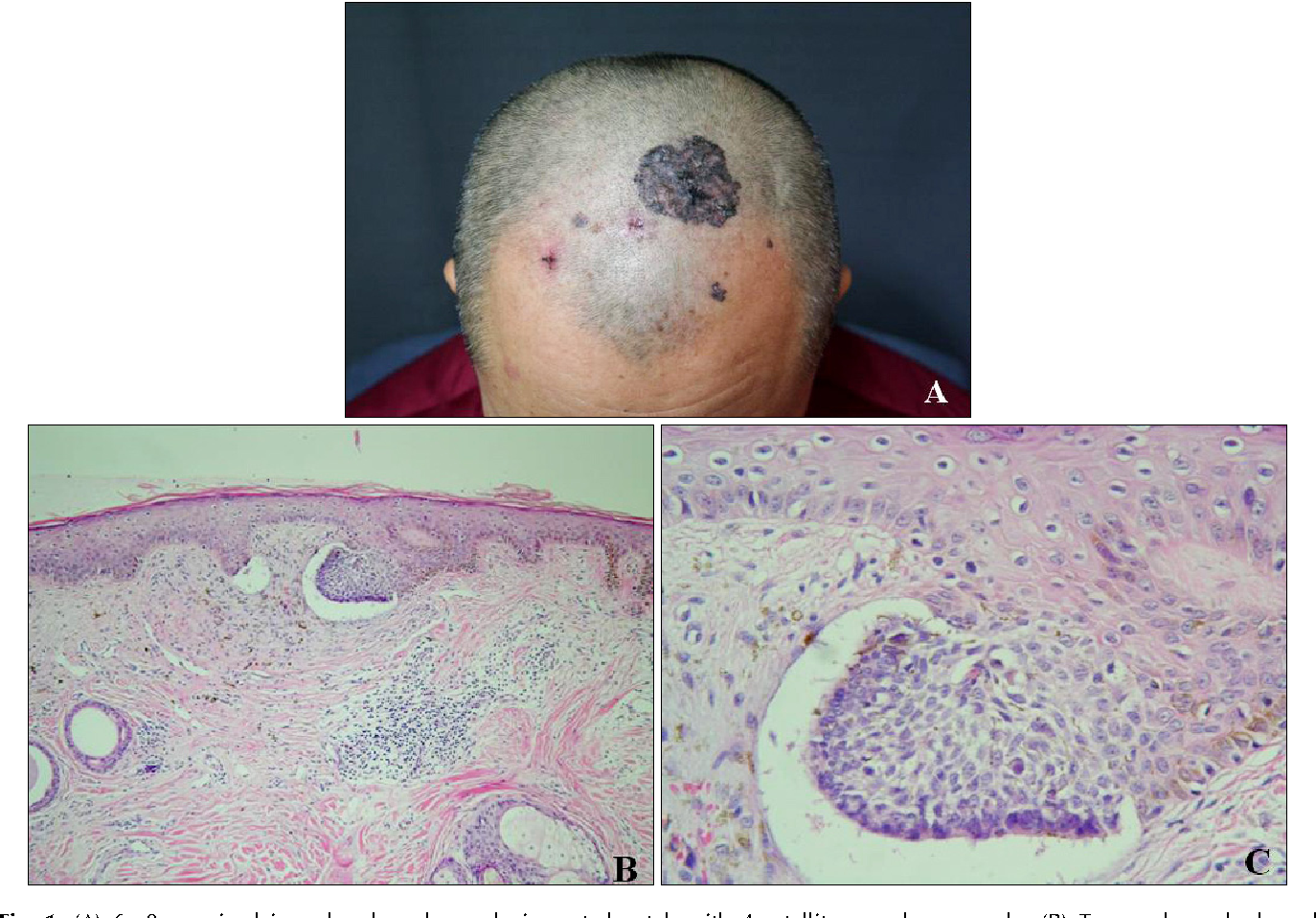 PDF] A Case of Superficial Giant Basal Cell Carcinoma with Satellite