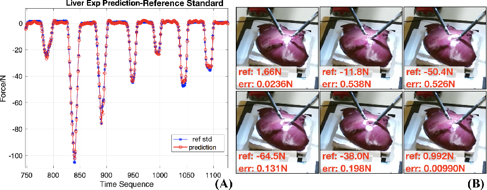 Figure 1 for Learning to See Forces: Surgical Force Prediction with RGB-Point Cloud Temporal Convolutional Networks
