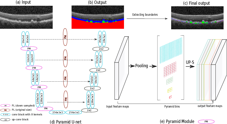 Figure 1 for U-Net with spatial pyramid pooling for drusen segmentation in optical coherence tomography