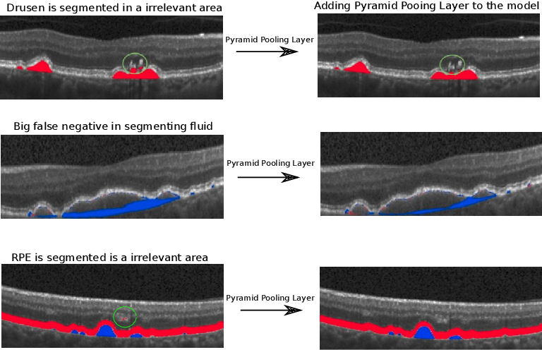 Figure 4 for U-Net with spatial pyramid pooling for drusen segmentation in optical coherence tomography
