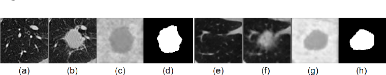Figure 2 for Correlation via synthesis: end-to-end nodule image generation and radiogenomic map learning based on generative adversarial network