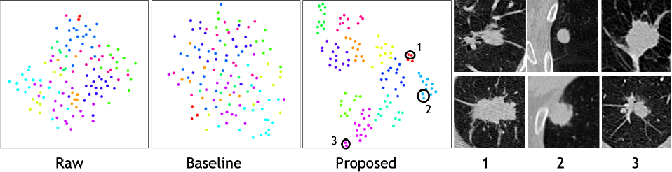 Figure 4 for Correlation via synthesis: end-to-end nodule image generation and radiogenomic map learning based on generative adversarial network