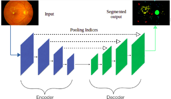 Figure 1 for Fully Convolutional Neural Network for Semantic Segmentation of Anatomical Structure and Pathologies in Colour Fundus Images Associated with Diabetic Retinopathy