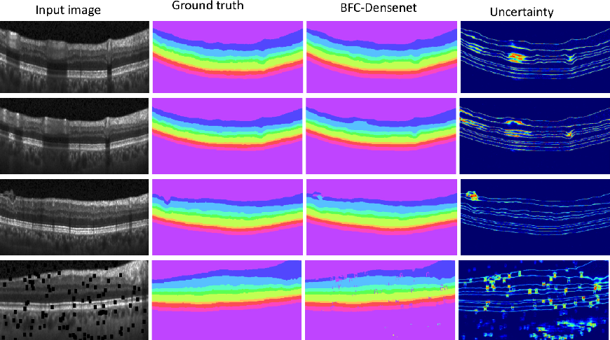 Figure 2 for Joint Segmentation and Uncertainty Visualization of Retinal Layers in Optical Coherence Tomography Images using Bayesian Deep Learning