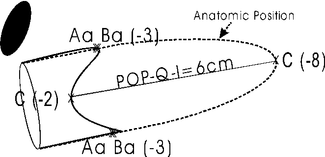 Fig. 2 Direct POP-Q-I is given by the distance in centimeters at which a determined POP-Q point lies from its anatomic position