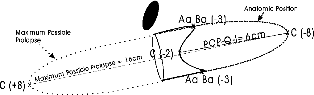 Fig. 3 Proportional POP-Q-I is the first value divided by its maximum direct POP-Q-I score and is expressed as a proportion