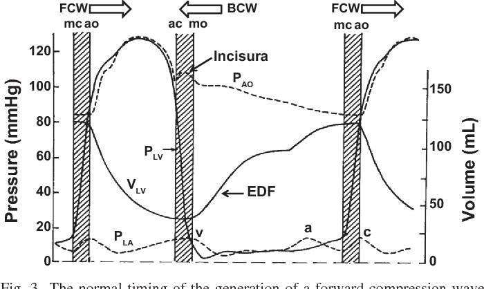 Expanding Application Of The Wiggers Diagram To Teach Cardiovascular