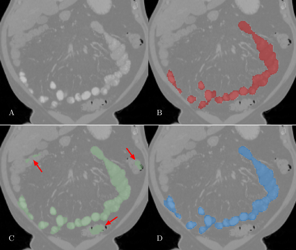 Figure 3 for Deep Small Bowel Segmentation with Cylindrical Topological Constraints