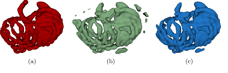 Figure 4 for Deep Small Bowel Segmentation with Cylindrical Topological Constraints