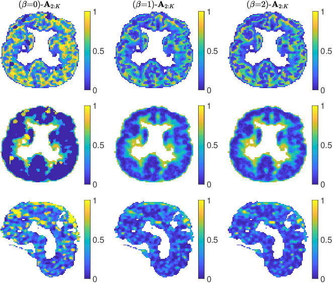 Figure 4 for Factor analysis of dynamic PET images: beyond Gaussian noise