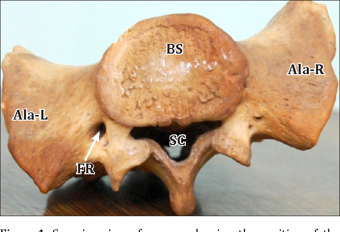 Figure 1 from A new foramen on posterior aspect of ala of first ...