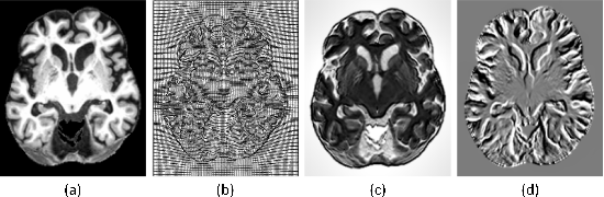 Figure 1 for Deformable Registration Using Average Geometric Transformations for Brain MR Images