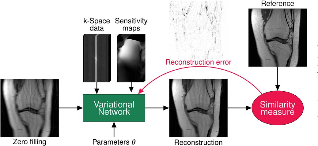 Figure 2 for Learning a Variational Network for Reconstruction of Accelerated MRI Data