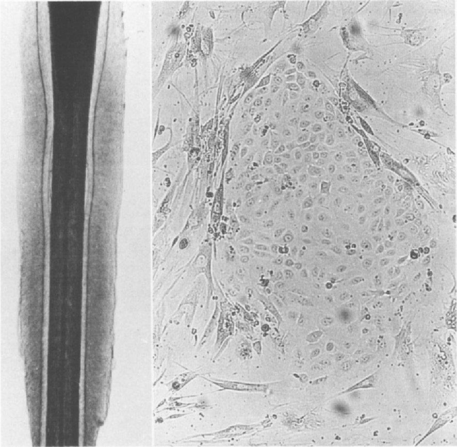 Fig. 1. Plucked anagen hair witlh intact outer root sheath (left); hair bulb and hair shaft are cut off (x I60). Primary ct~tture of O RSK on fibroblast feeder-layer cells at day 10 (right)