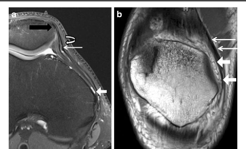 Structure of medial patellar retinaculum - Semantic Scholar