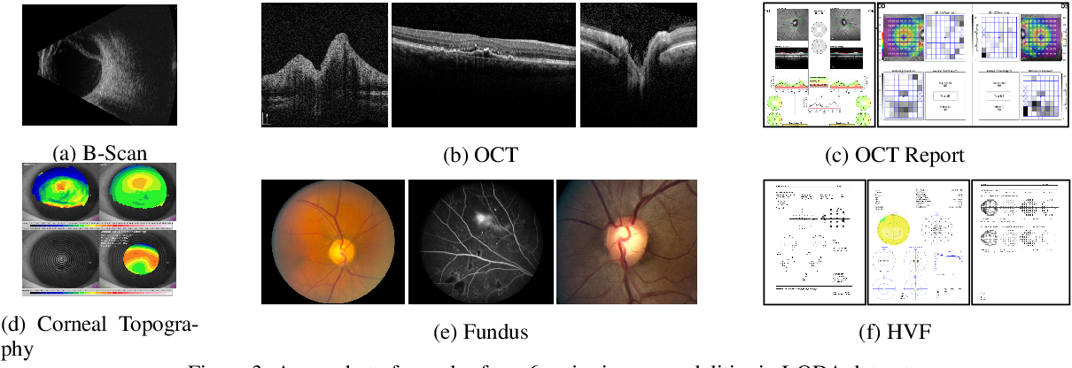Figure 3 for I-ODA, Real-World Multi-modal Longitudinal Data for OphthalmicApplications