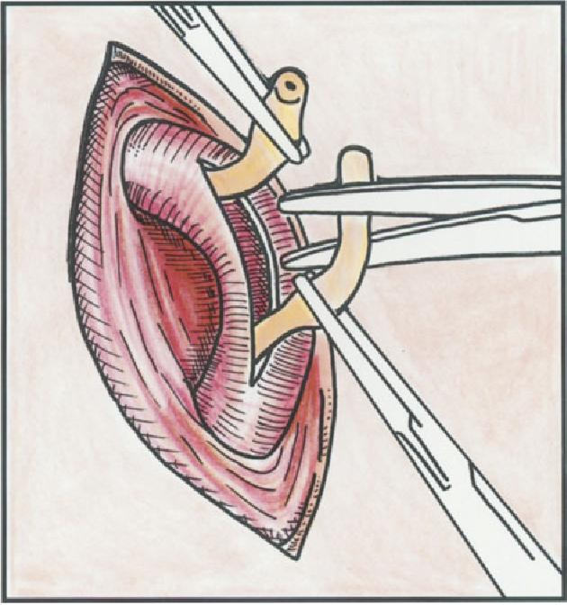 figure 4.82