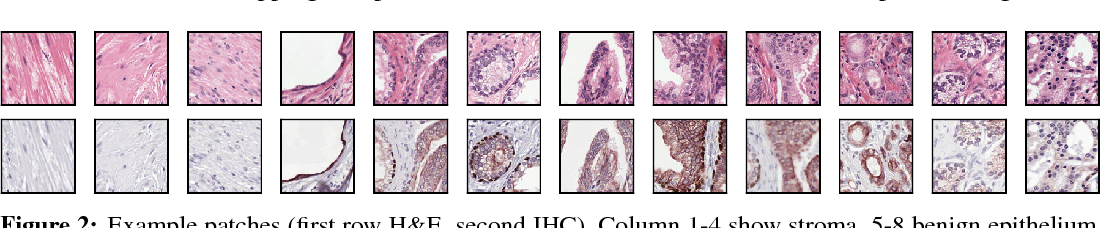 Figure 3 for Unsupervised Prostate Cancer Detection on H&E using Convolutional Adversarial Autoencoders