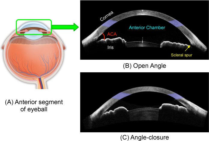 Figure 1 for Angle-Closure Detection in Anterior Segment OCT based on Multi-Level Deep Network