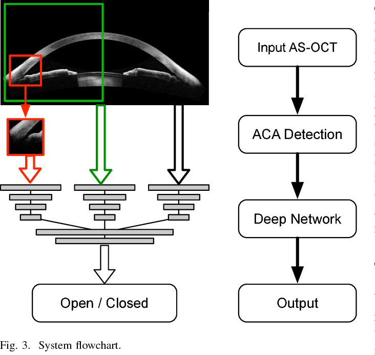 Figure 3 for Angle-Closure Detection in Anterior Segment OCT based on Multi-Level Deep Network