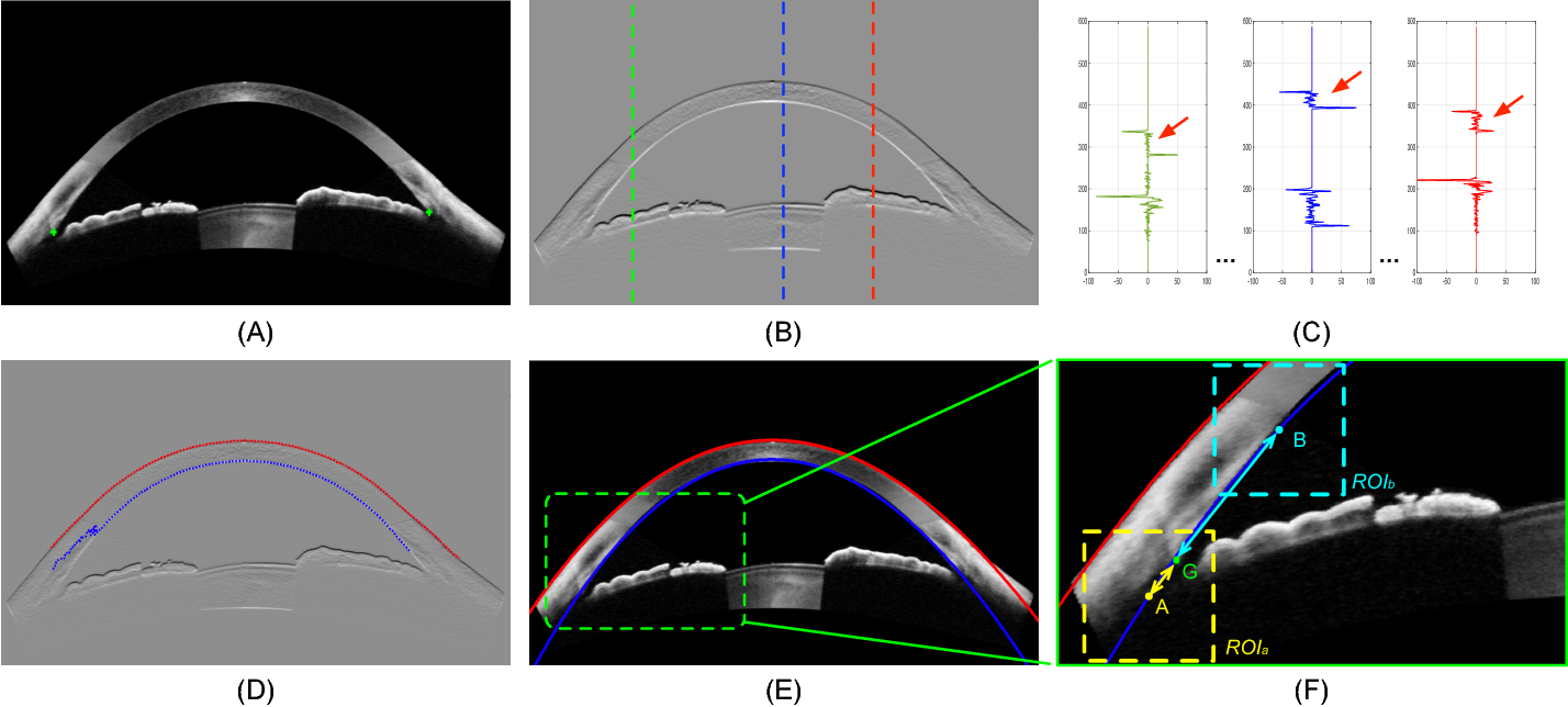 Figure 4 for Angle-Closure Detection in Anterior Segment OCT based on Multi-Level Deep Network