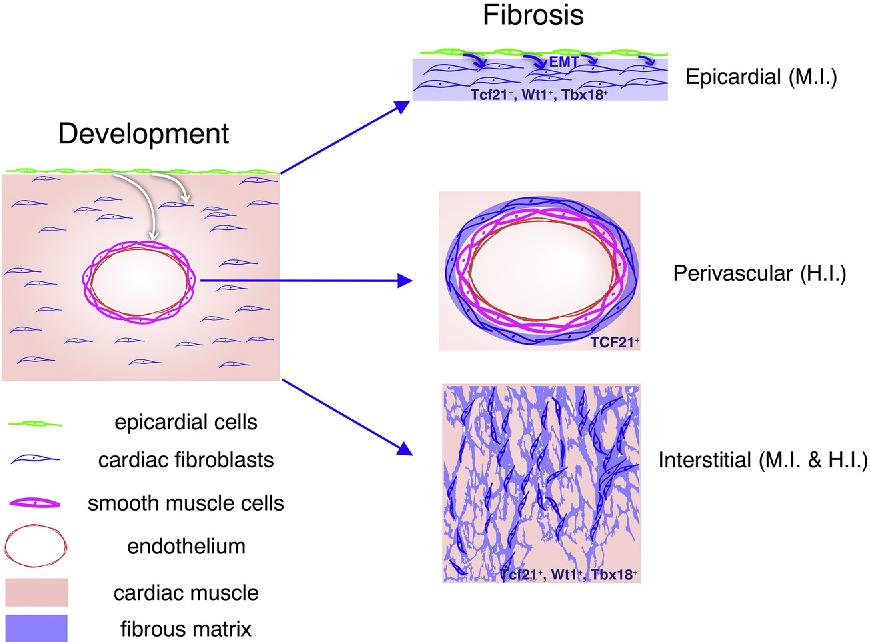 Epicardium derived fibroblasts in heart development and disease figure 1 ccuart Choice Image
