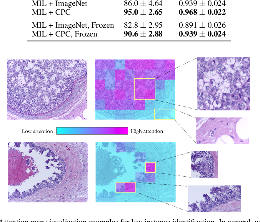 Figure 3 for Semi-Supervised Histology Classification using Deep Multiple Instance Learning and Contrastive Predictive Coding