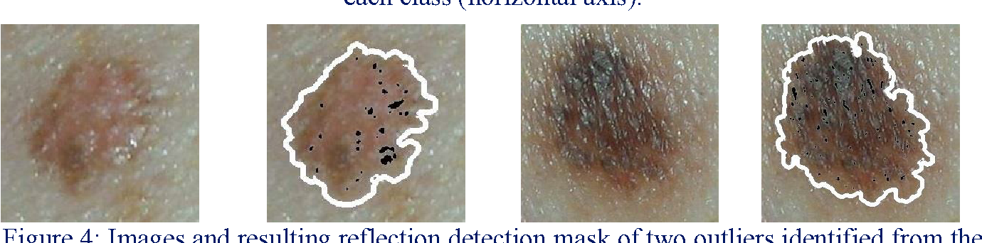 PDF] Automatic Reflection Detection on Dermatological Images