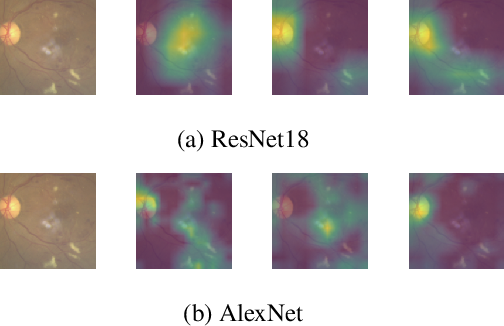 Figure 4 for When Differential Privacy Meets Interpretability: A Case Study