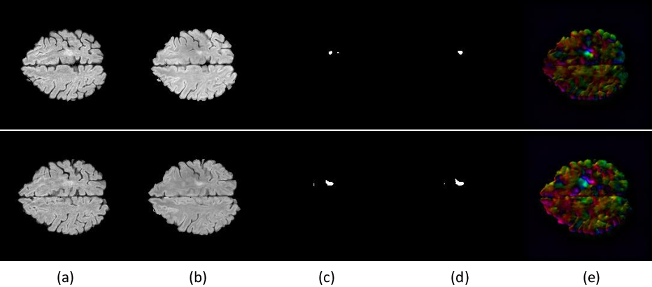 Figure 3 for Spatio-temporal Learning from Longitudinal Data for Multiple Sclerosis Lesion Segmentation