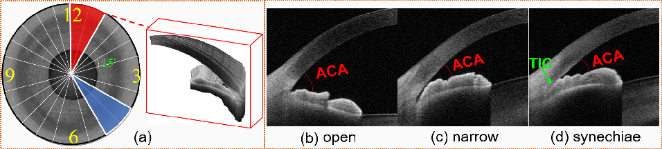 Figure 1 for Open-Narrow-Synechiae Anterior Chamber Angle Classification in AS-OCT Sequences