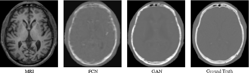 Figure 4 for Medical Image Synthesis with Context-Aware Generative Adversarial Networks