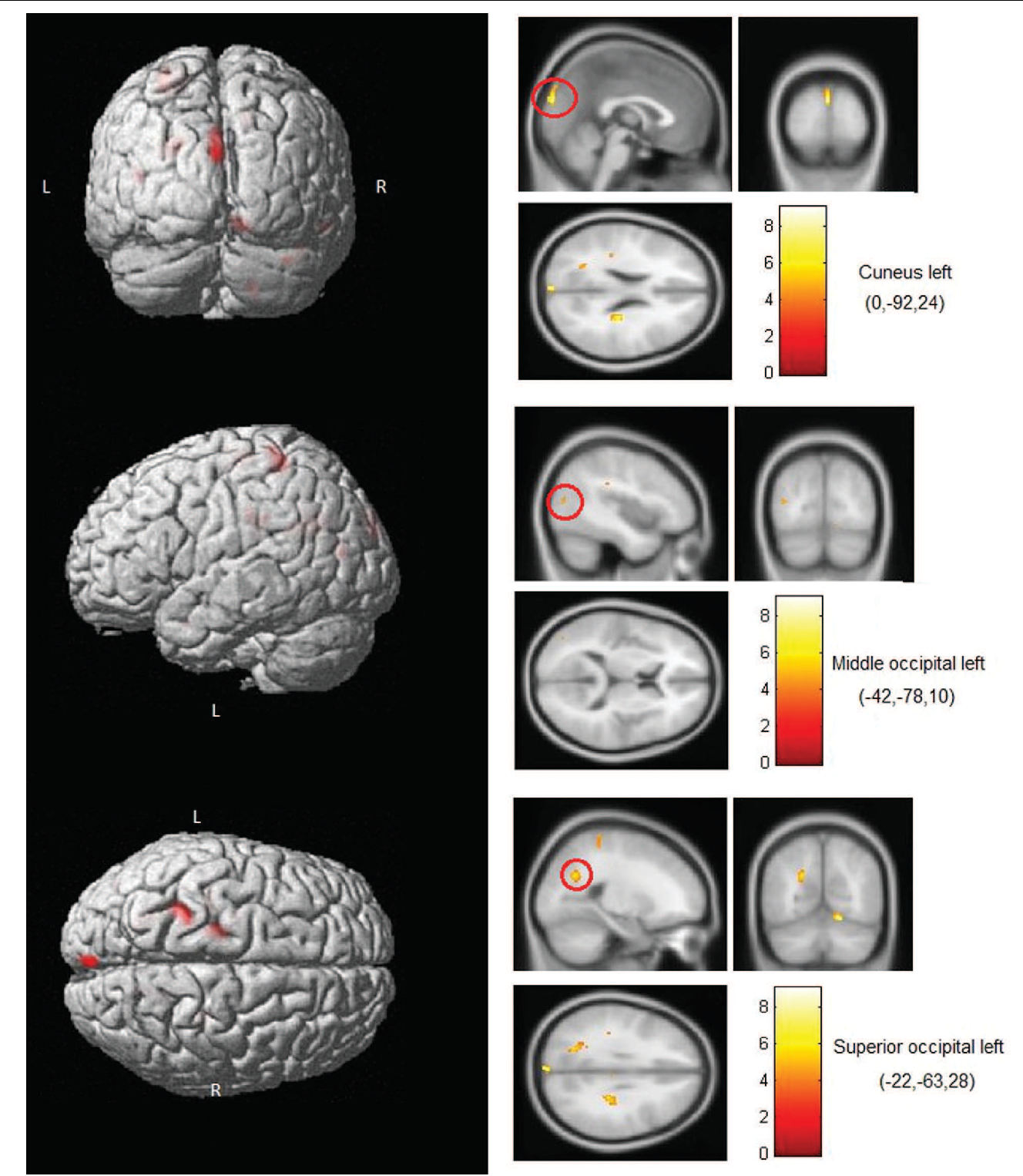 FIGURE 5 | Brain areas where activity predicted IPTs. Shown here are occipital areas where BOLD activity during right hand exploration in blind subjects significantly correlated with the IPTs. No correlations involving occipital areas were found for left-hand stimulation or for either hand in the sighted subjects.