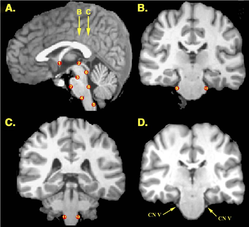 Figure 2 from Automated brainstem co-registration (ABC) for MRI ...