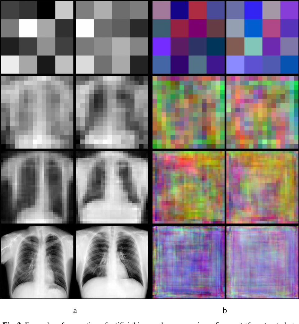 Figure 4 for Examining the Capability of GANs to Replace Real Biomedical Images in Classification Models Training