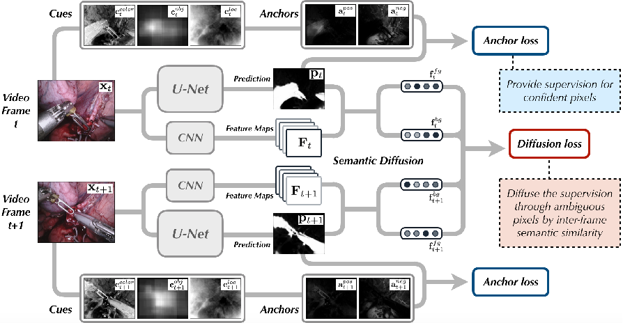Figure 1 for Unsupervised Surgical Instrument Segmentation via Anchor Generation and Semantic Diffusion