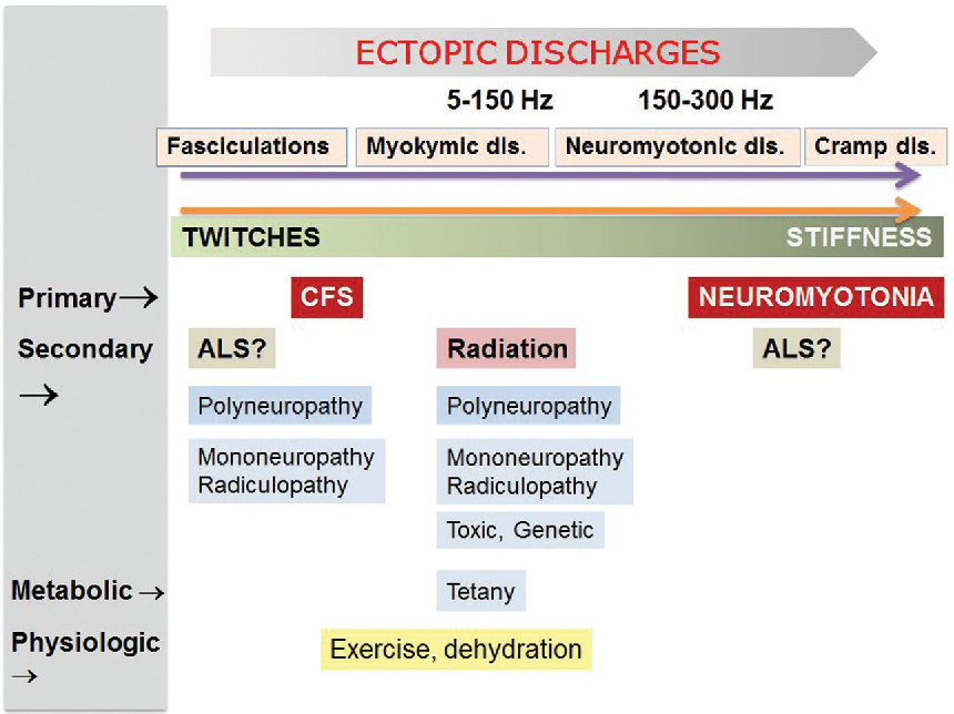 Figure 1 from Peripheral nerve hyperexcitability syndromes