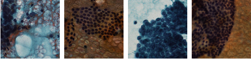 Figure 1 for Highly Efficient Follicular Segmentation in Thyroid Cytopathological Whole Slide Image